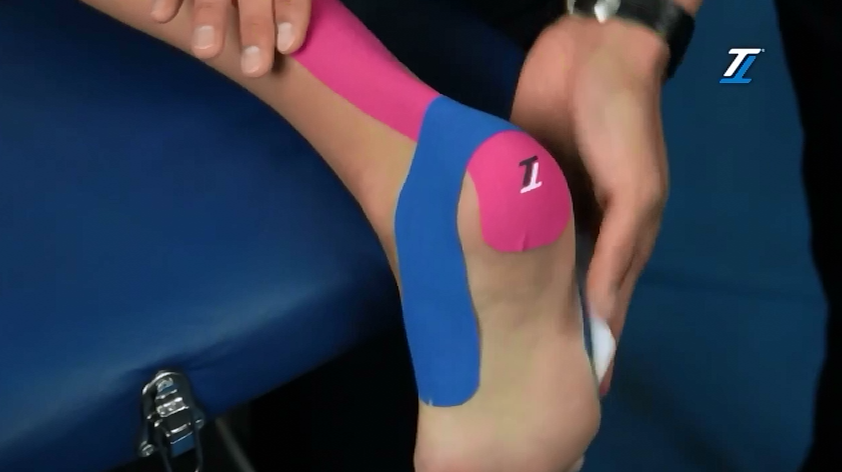 Achilles tendon TT Tape treatment