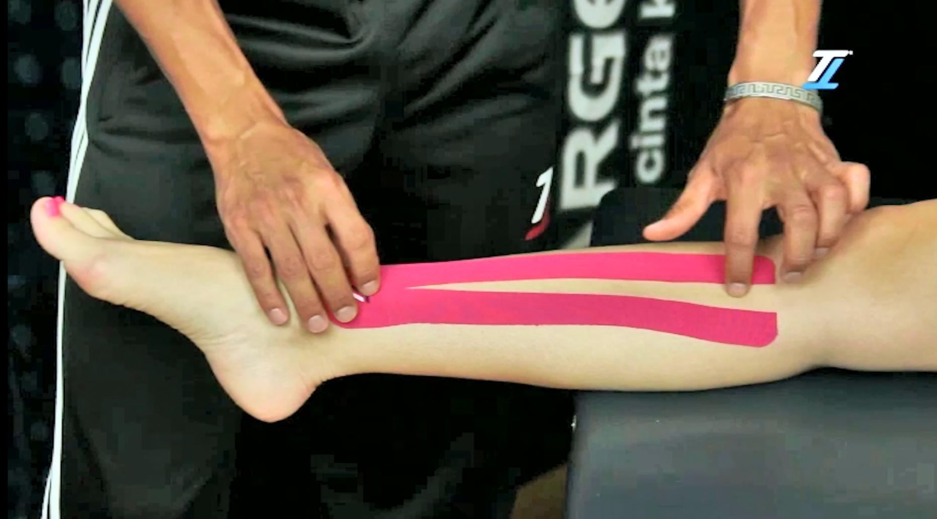 Shin Splints tape application